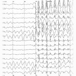 Una vita normale anche per chi soffre di epilessia: ricerca e sensibilizzazione targate Unicusano