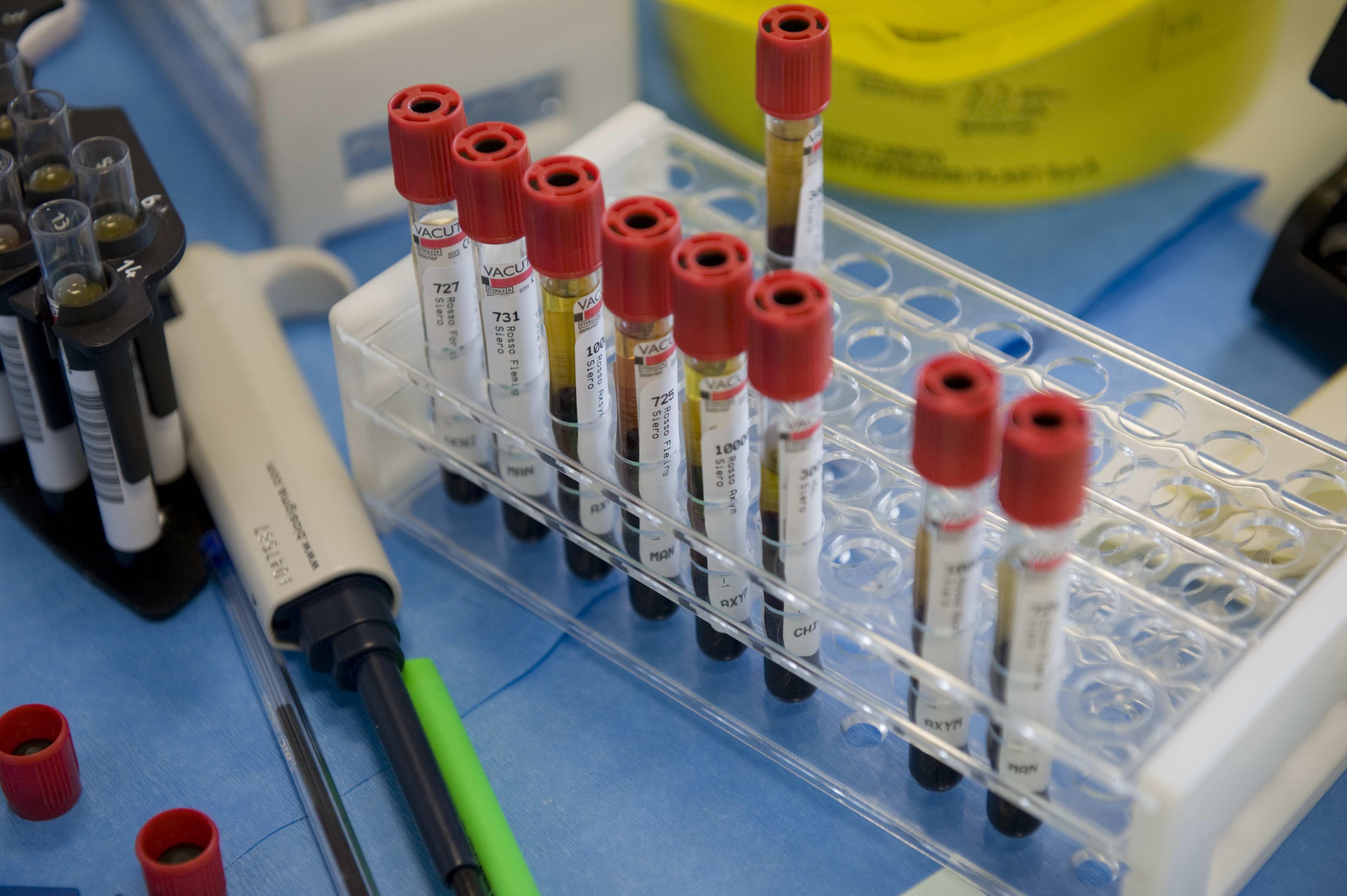 Il team di ricercatori della Cusano e la lotta al cancro