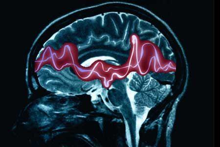 Basta pregiudizi sull'epilessia