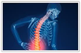 Il nuovo focus della Cusano: contro l'osteoporosi
